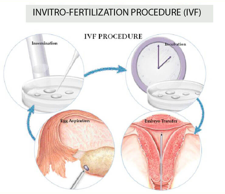 In Vitro Fertilisation (IVF), fertility, fertility doctor